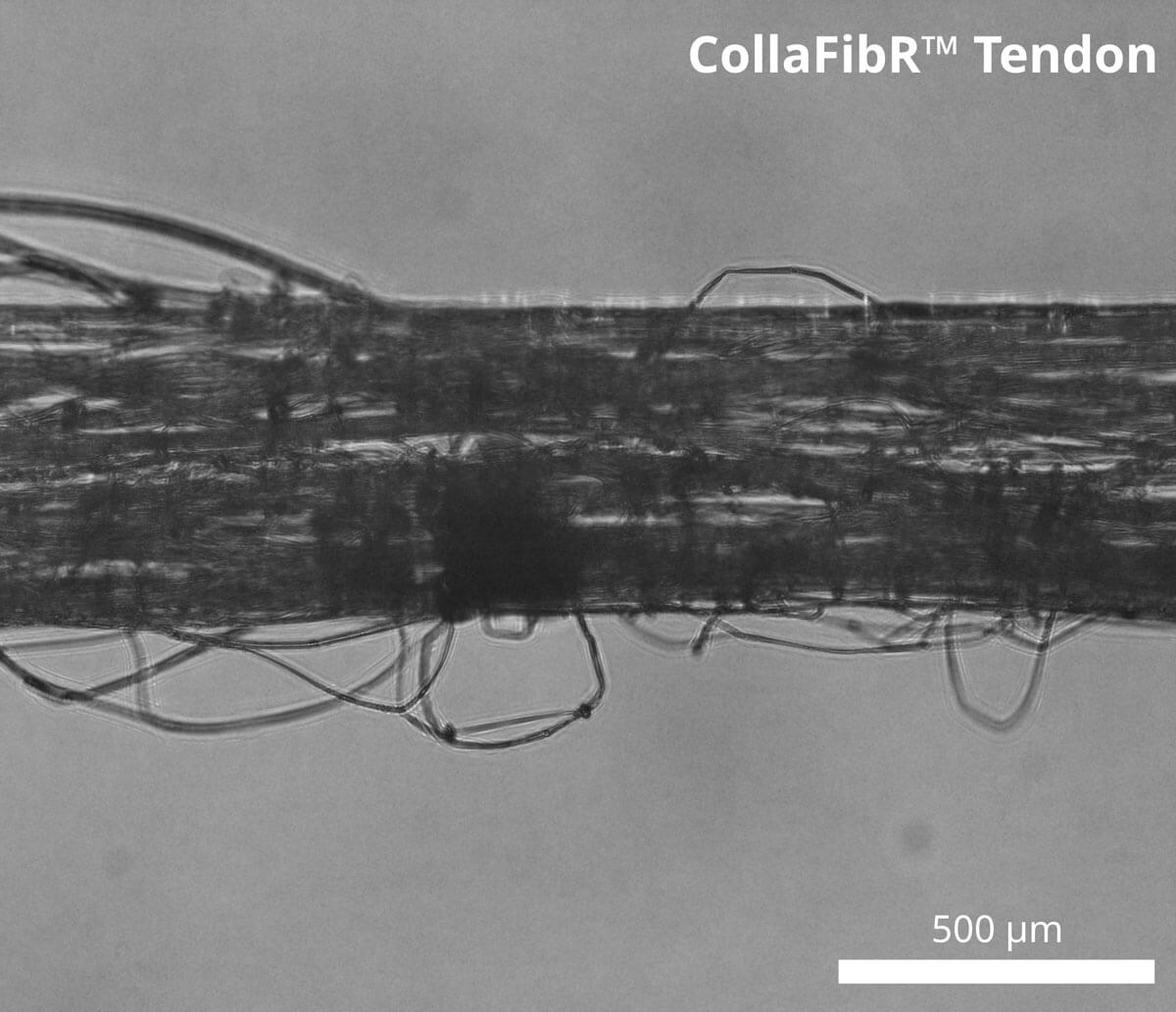 Image of Collagen Fiber