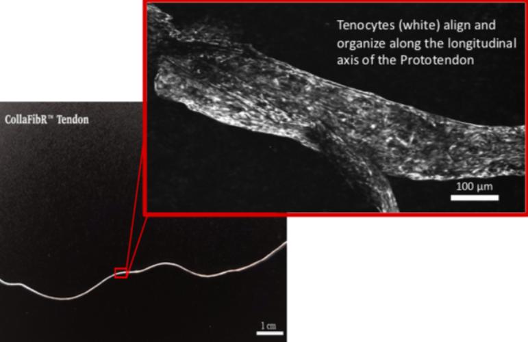 tendon image
